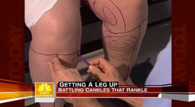 Cosmetic surgery is promoted as a cure for cankles