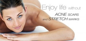 Ad against acne scars and stretch marks.