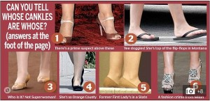 """The term """"cankles"""" allows for a whole fat-shaming article about """"the curse of the cankle"""" and how it affects celebrities."""