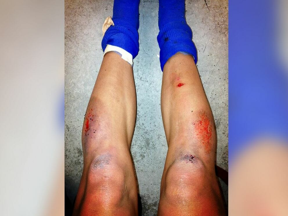 "USWNT player Sydney Leroux posted this picture of her ""turf burn"" (read: literal hell) earlier this year."
